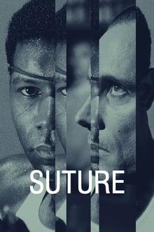 Image Suture